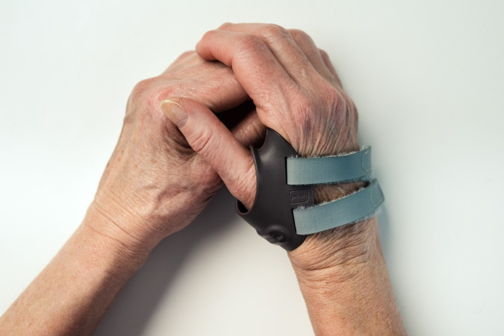 To hender som holder hverandre, en med støtte (Illustrasjonsfoto)